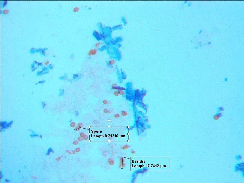 Lindtneria panphylensis – hymenial layer microslide