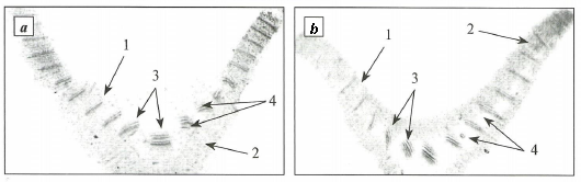 Cross section of Voronov's snowdrop (a) and common snowdrop leaves (b)
