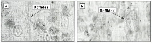 Calcium oxalate raffides in the cells of Voronov's snowdrop (a) and common snowdrop (b) mesophyll